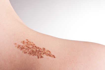 Birthmark Treatments Cardiff
