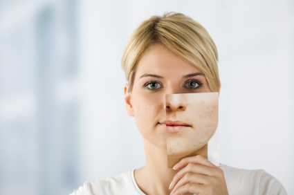 Acne Scarring and Rosacea