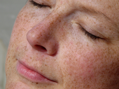 Facial Pigmentation Treatments