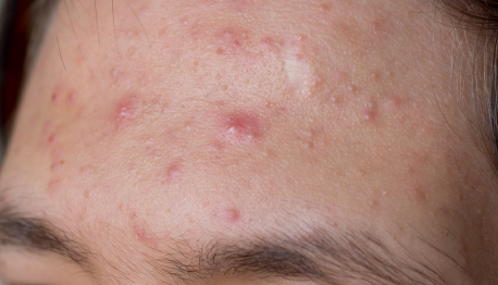 Acne treatments cardiff stoke poges london aylesbury milton keynes