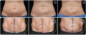 Coolsculpting before and after, Fat freezing before and after treatment in Cardiff, Wales, London, England